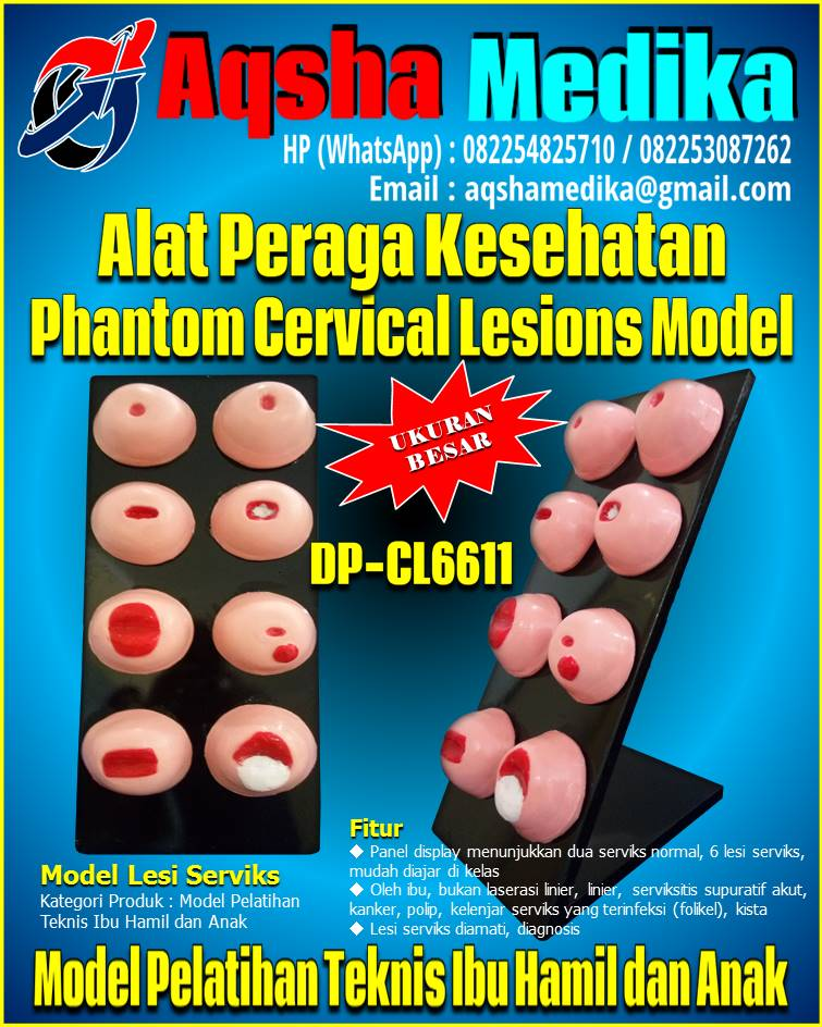 Jual Phantom Model Lesi Serviks DP-CL6611 Aqsha Medika